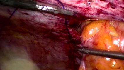 Chirurgie herniaire