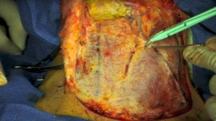 Curage cervical