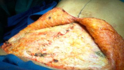 Lipectomie abdominale