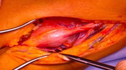 Neurinomectomie