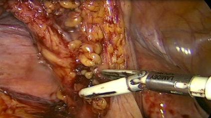 Sygmoïdectomie